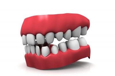 """Teeth Model"" by cooldesign"
